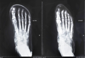 An x-ray of a foot in Altras (left) and conventional shoes (right).
